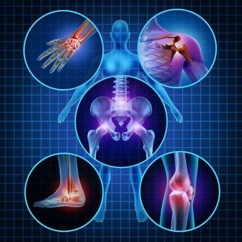 Arthritis Natural Prevention Tips