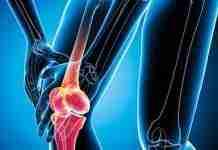 Tips for preventing knee osteoarthritis