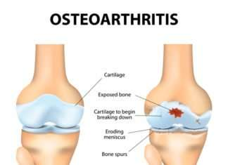Knee Osteoarthritis symptoms, diagnosis and treatments