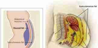 visceral fat loss