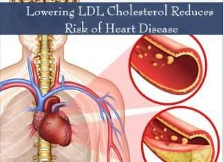 Bad Good Cholesterol & Heart Disease