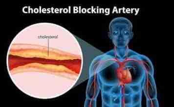 Natural ways to reduce cholesterol
